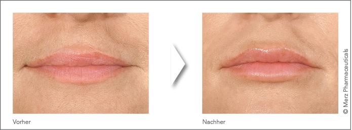 Lippenkorrektur_1_Vorher_Nachher_4